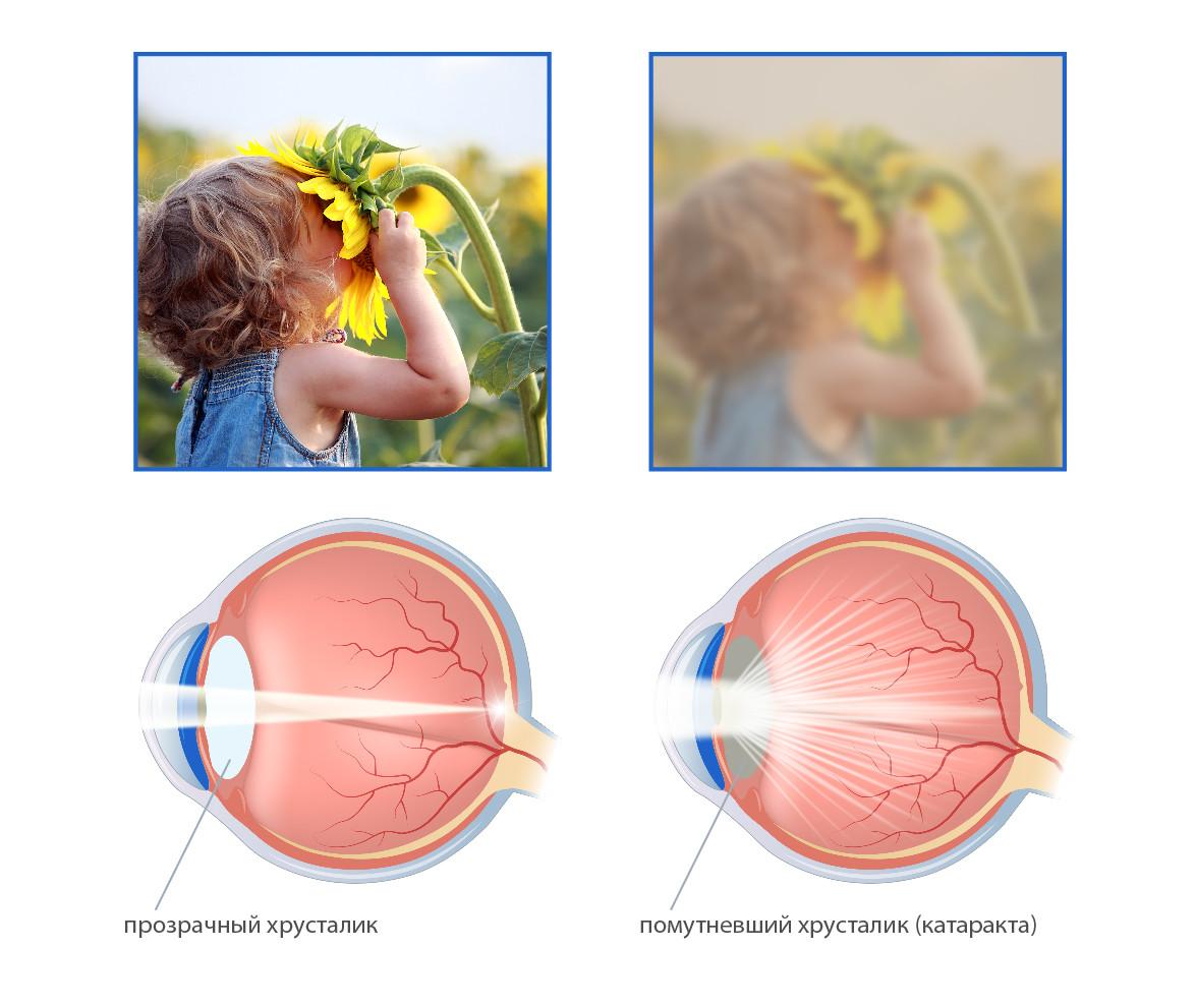Удаление катаракты в Самаре